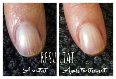 Mes solutions pour venir à bout des ongles striés - Ongles striés résultat